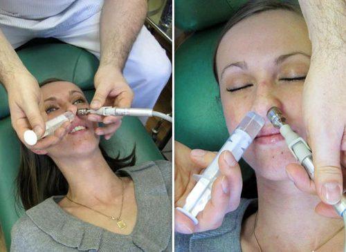 промывание носовых ходов кукушкой