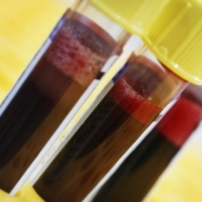 АПТВ анализ крови