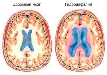 гідроцефалія