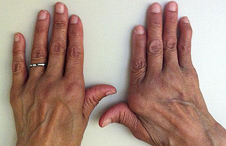 Лечение полиартрита, препараты