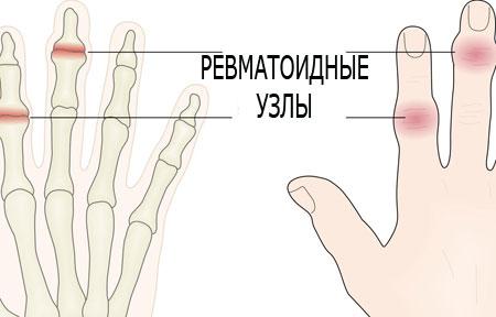 Лечение ревматоидного артрита рук