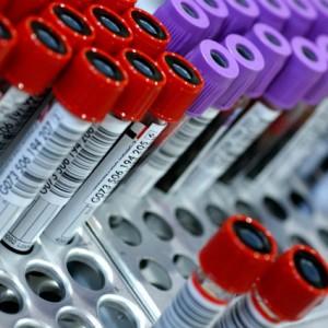 Лейкоформула крови