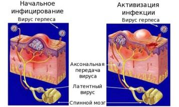 Mehanizm-zarazhenija-virusom-gerpesa