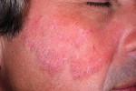 Микоз кожи лица