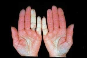 Немеют пальцы на левой руке мизинец