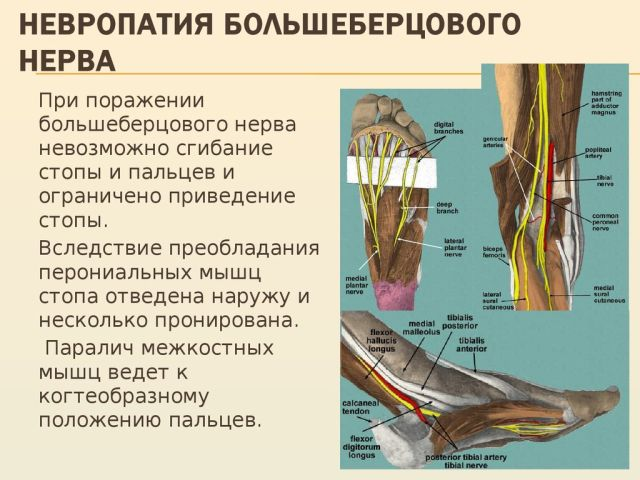 Невропатии конечности