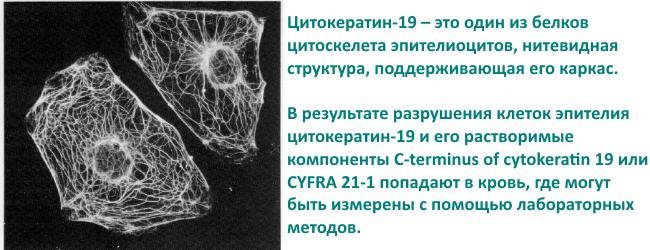 Onkomarker raka legkogo CYFRA 21-1 Onkomarker raka legkogo CYFRA 21-1