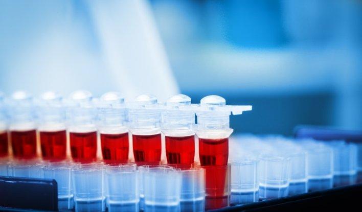 Норма загального ПСА в аналізі крові і відхилення при простатиті