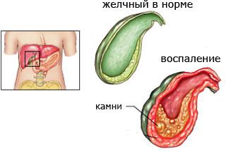 Причины холецистита