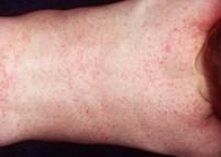 Герпес 7 типа: симптомы