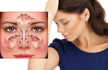 Симптомы фронтита у взрослых