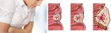 Симптомы рака кишечника