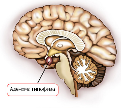 Аденома гипофиза и гиперпролактинемия