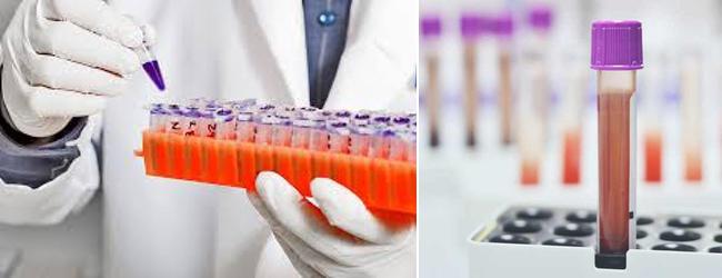 amg-antimyullerov-gormon