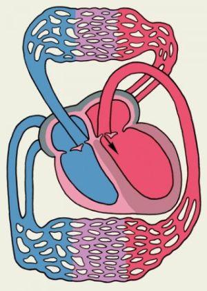 дилатация боковых желудочков