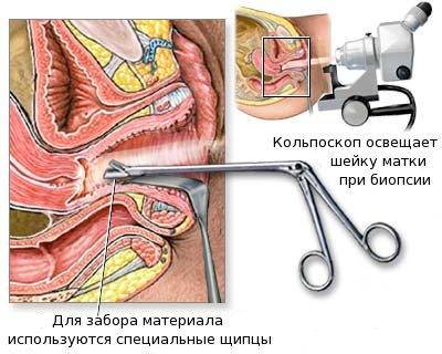 biopsia2