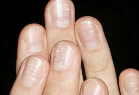 белые пятна но ногтях