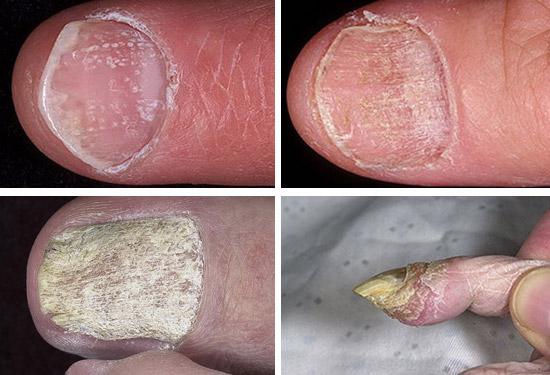 ногти при псориазе