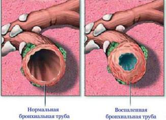 лечение хронического бронхита у взрослых