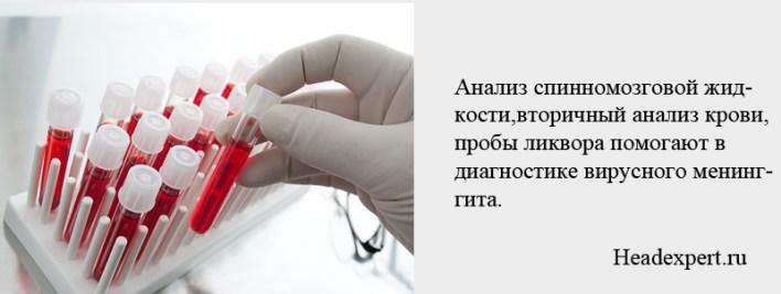 Вирусный менингит диагностируется с помощью анализа крови, спинномозговой жидкости