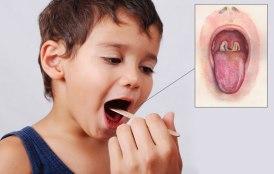 difterija-1