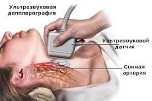 Допплер шеи и мозга