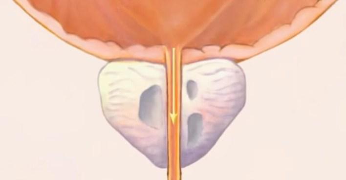 Наслідки операції з видалення аденоми простати