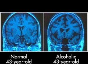 мозг здорового человека и алкоголика