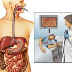 Эндоскопическое исследование желудка