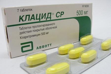 Иногда назначают антибактериальные антибиотики, например Клацид или Сумамед