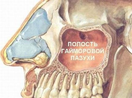 Месторасположение полости гайморовой пазухи