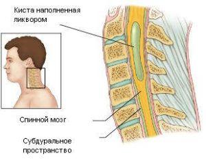 Анатомия спинного канала