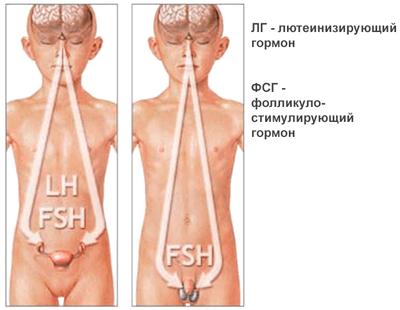 Гипогонадотропный гипогонадизм
