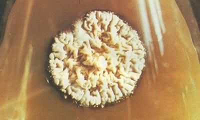 trichophyton (трихофития).