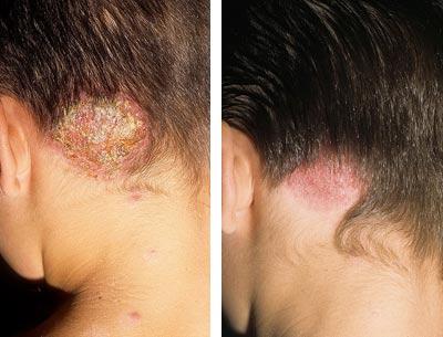 лечение грибка кожи головы.