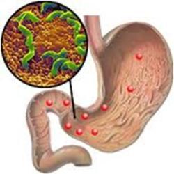 Какие болезни может вызвать микроорганизм?