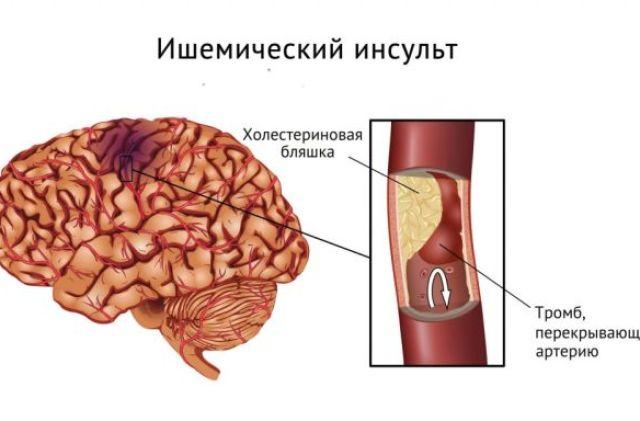 спинальный ишемический инсульт МРТ