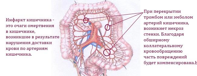 infarkt-kishechnika