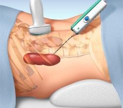 как проводится биопсия печени