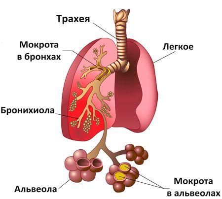 Пневмония как развитие бронхита