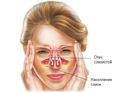 Проявление катарального гайморита