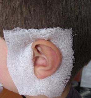 Как сделать компресс на ухо