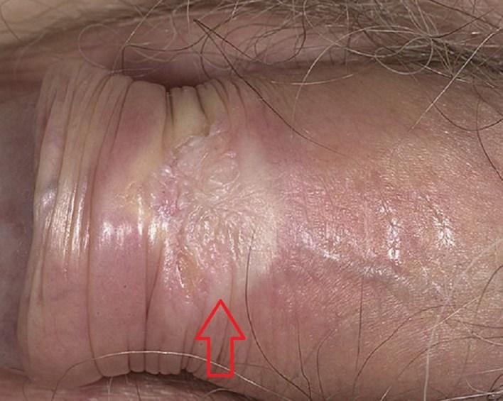 Крауроз у чоловіків: прояви, диференціальна діагностика, особливості лікування
