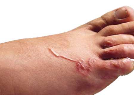 Фото симптомов заражения личинкой нематод