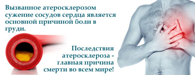 lipidogramma