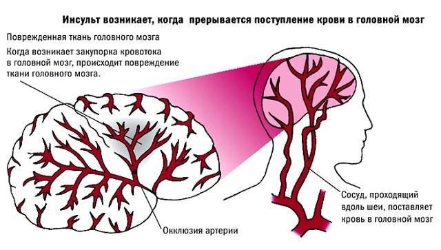 Механизм развития миастении