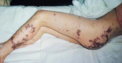 Геморрагическая сыпь при менингококцемии.