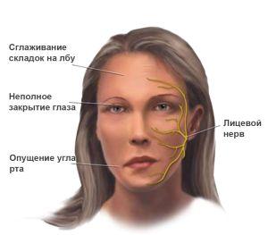 миастения - симптомы