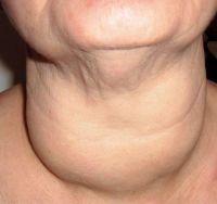 О чем может говорить изменение уровня тиреотропного гормона?