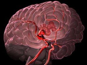 церебральная ангиодистония